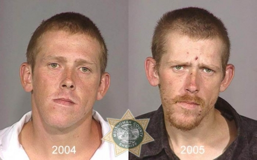 Before And After Meth 01