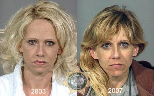 Before And After Meth 02