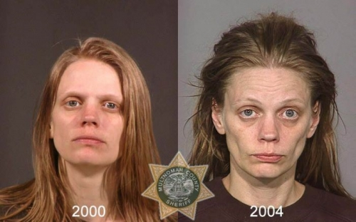 Before And After Meth 03