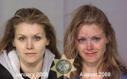 Before And After Meth 04