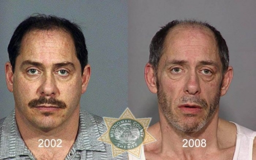 Before And After Meth 05