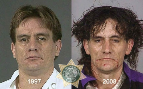 Before And After Meth 06