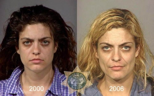 Before And After Meth 07