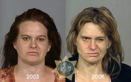 Before And After Meth 08
