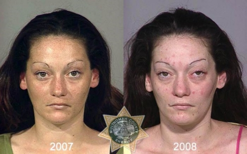 Before And After Meth 09