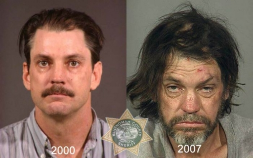 Before And After Meth 10