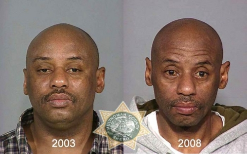 Before And After Meth 11