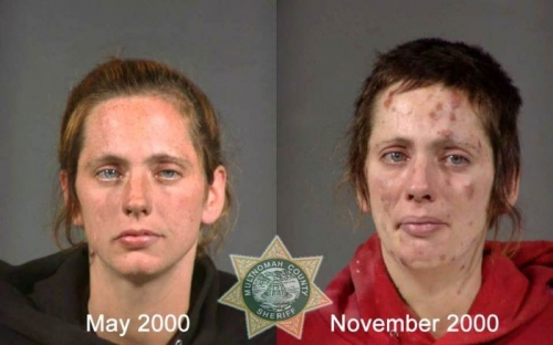 Before And After Meth 12
