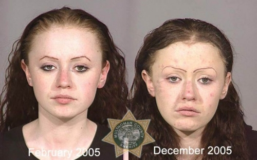 Before And After Meth 13