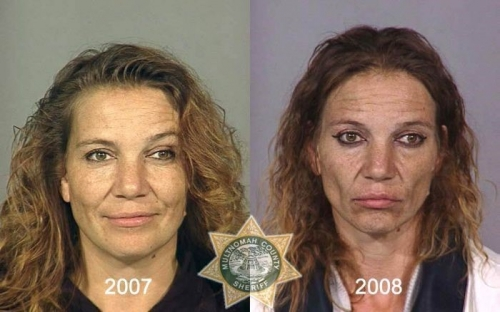 Before And After Meth 14
