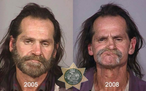 Before And After Meth 15