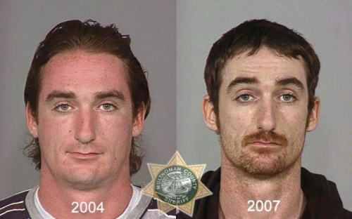 Before And After Meth 16