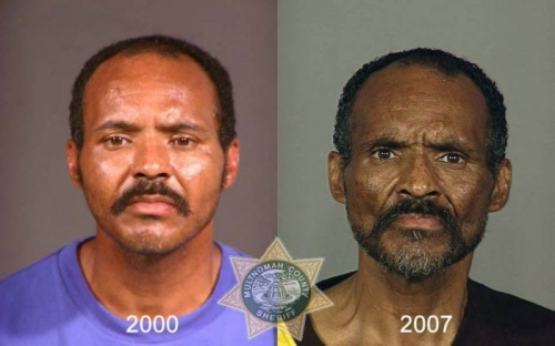 Before And After Meth 17