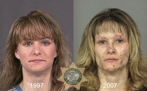 Before And After Meth 18