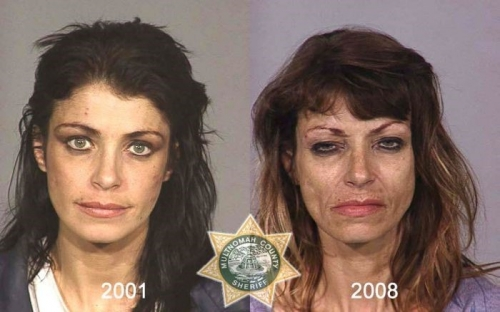 Before And After Meth 19