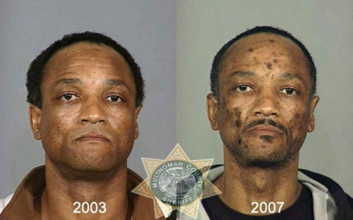 Before And After Meth 21