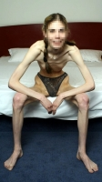 Skinny_is_the_new_ugly_16
