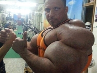 Synthol Abusers 11