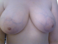 Veiny Breasts 30